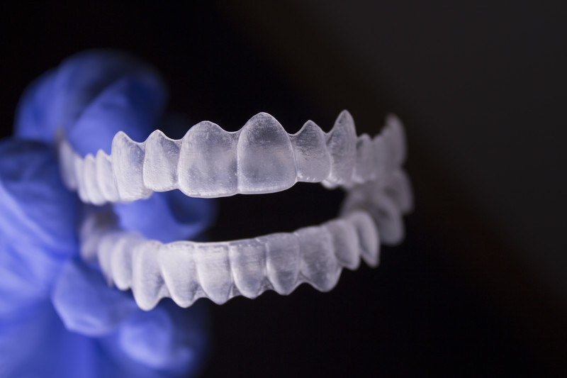 DIY Braces – Why You Should Leave Braces to Your Dentist