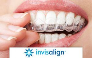 Invisalign In Florham Park NJ